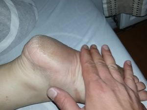 wife rough soles dry feet